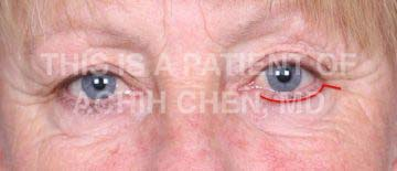 Incision for Transcutaneous Lower Eyelid Surgery