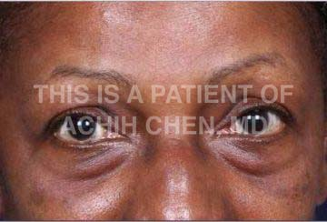 Lower Eyelid Bag/Bulge Image