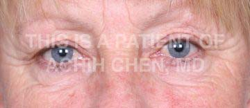 Lower Eyelid Bag/Bulge with Excess Skin Image