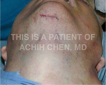 Neck lift incision under chin