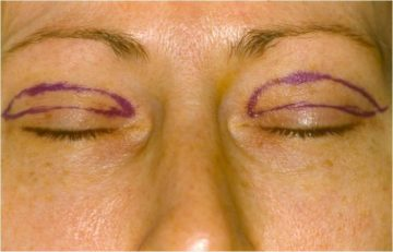 Upper eyelid surgery (blepharoplasty) incisions