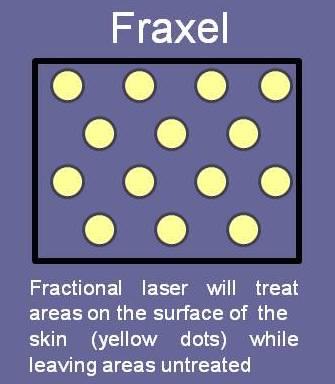 Diagram of Fraxel Laser Skin Treatment