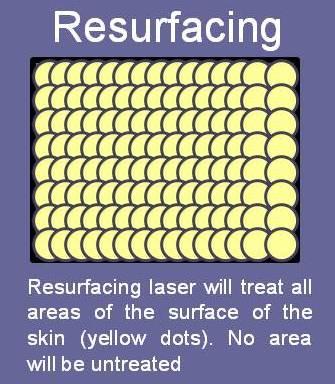 Diagram of laser skin resurfacing versus fraxel