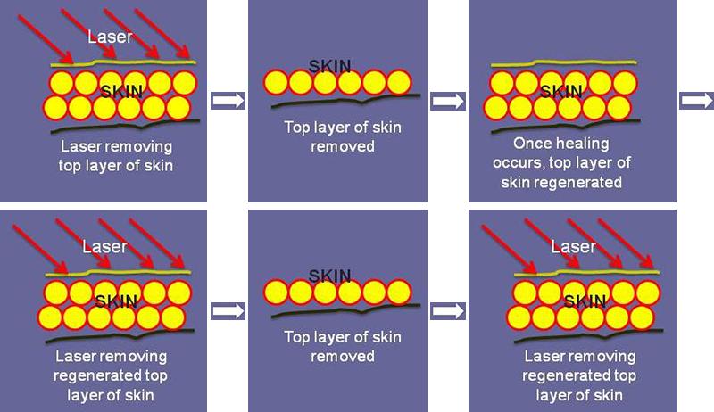Laser Resurfacing Diagram