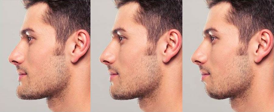 [Image: Chin-Position-Differences.jpg]
