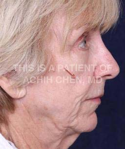 Before - Notice the volume loss of the mid-face occurring with facial aging, red arrow