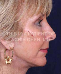 "After - Notice how restoring volume creates a ""lift"" by restoring the mid-face volume of a youthful face, red arrow"